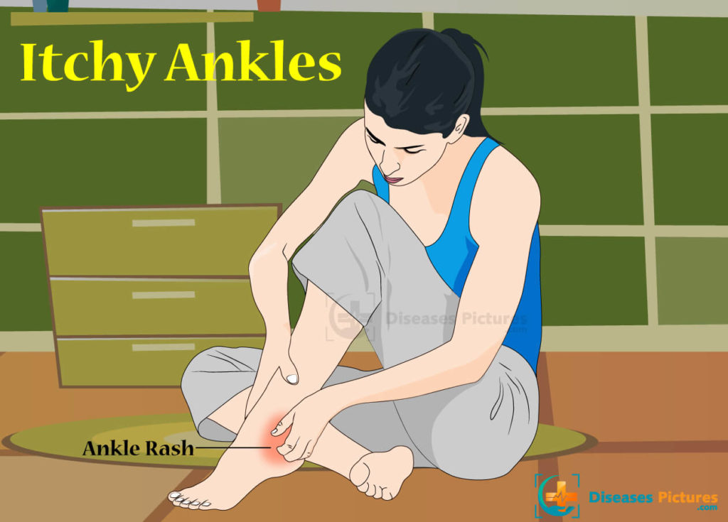 Itchy Ankles